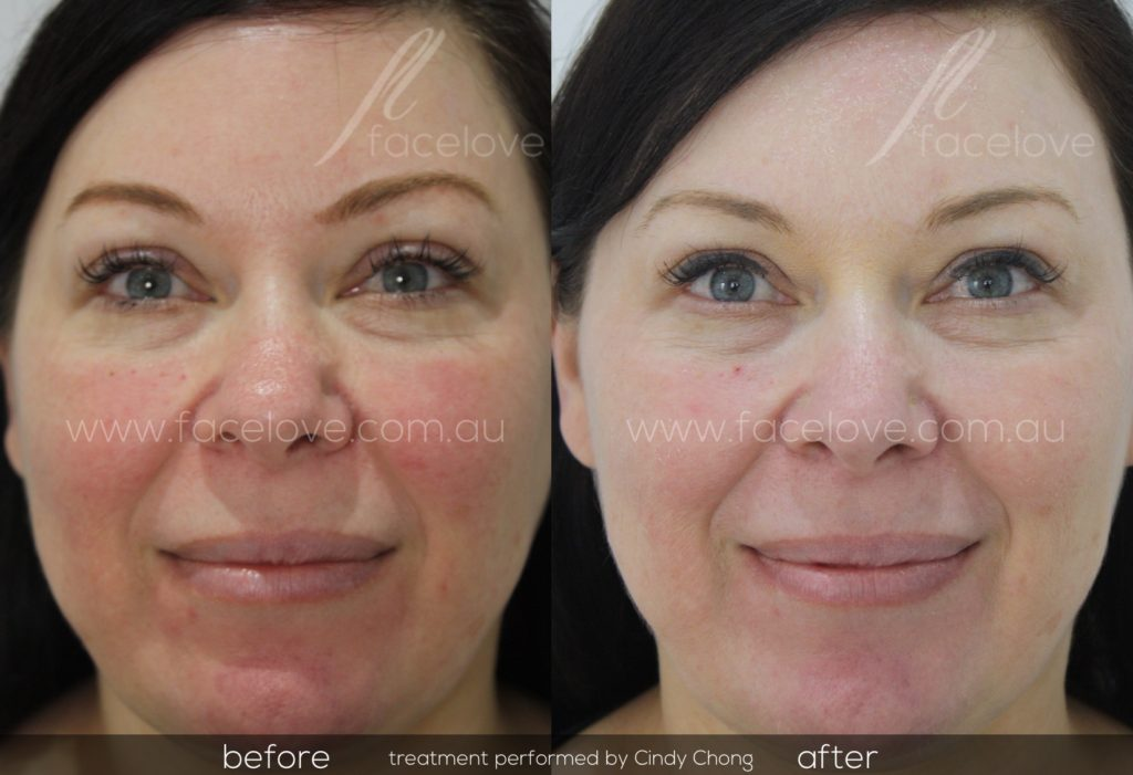Facial Redness Treatment before and after