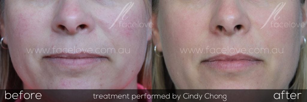Get rid of facial redness Melbourne