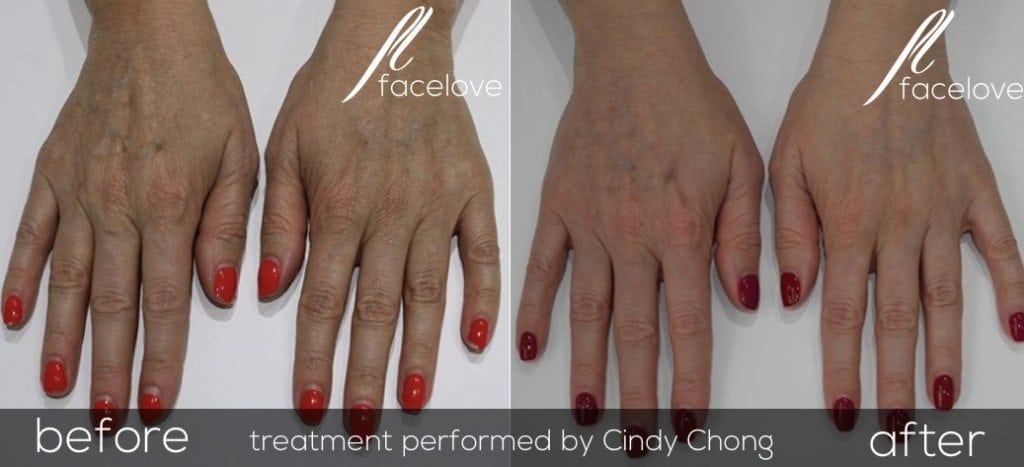 IPL Photorejuvenation Hands Before and After