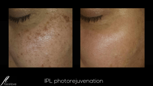 IPL photorejuvenation treatment facelove