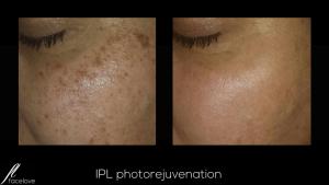 IPL photorejuvenation treatment facelove