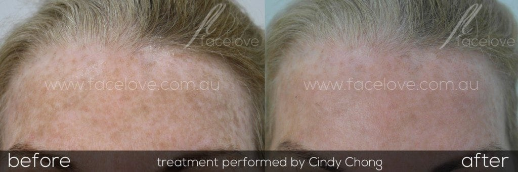 IPL Photrejuvenation treatment before and after