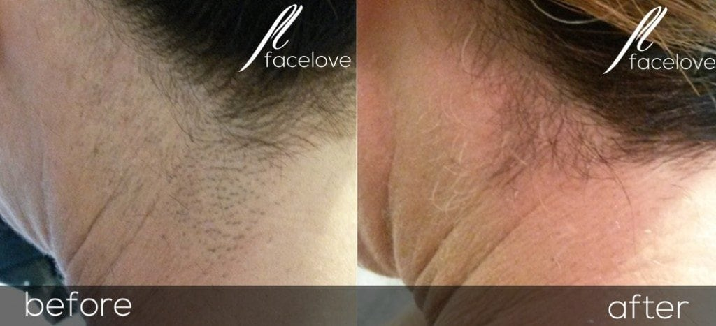 Laser hair removal treatment at facelove