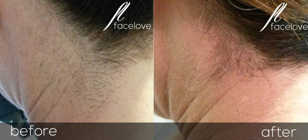 Laser hair reduction facelove if you are blonde the laser may not work we can discuss this at your consultation at facelove our lasers are high quality and our practitioners solutioingenieria Choice Image