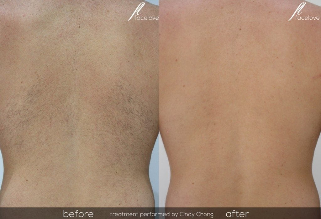 Laser Hair Removal Treatment Back @ Facelove