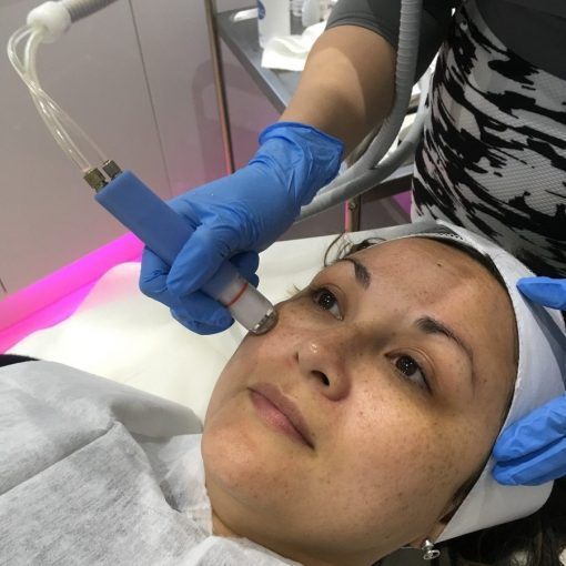 Microhydrabrasion treatment facelove