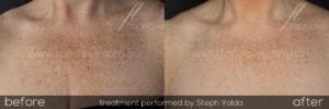 Pigmentation reduction using IPL on décolletage at Facelove