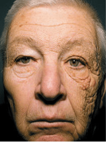 Old man looking at camera with lots of wrinkles on one side of his face