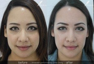 Face Slimming Treatment Before and After