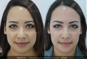 Face Slimming Treatment Before and After Facelove