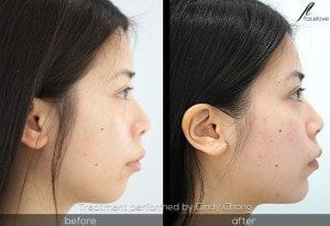 before and after chin augmentation cindy chong