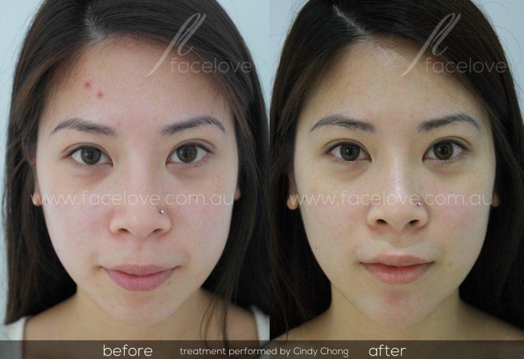 facial reshaping before and after chin augmentation cindy chong