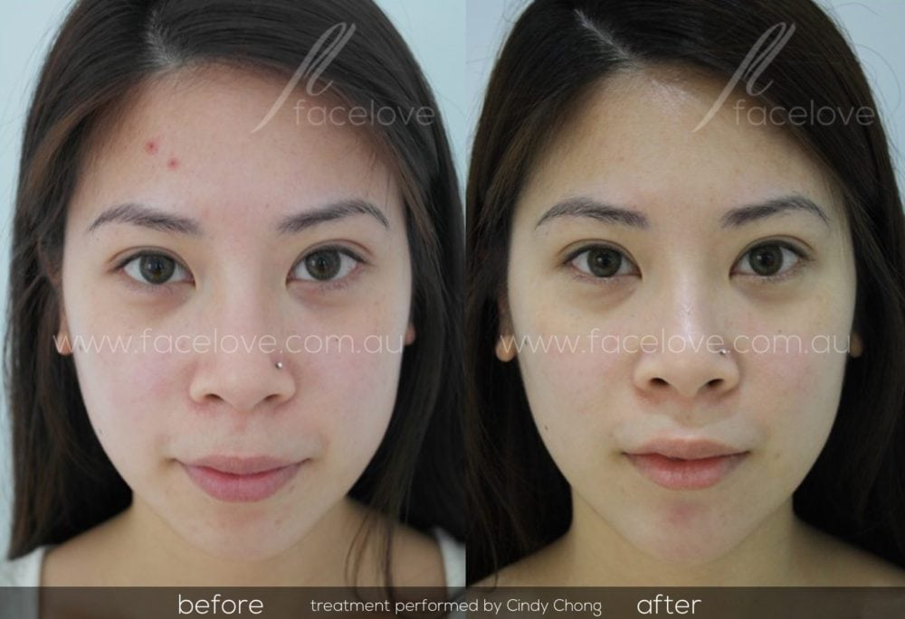 facial reshaping before and after chin augmentation cindy chong