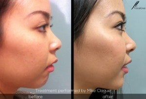 facial reshaping before and after chin augmentation mike clague