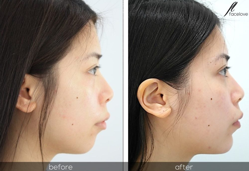 facial reshaping before and after chin augmentation