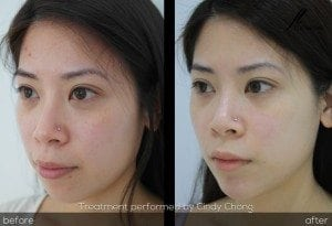 facial reshaping before and after cindy chong facelove