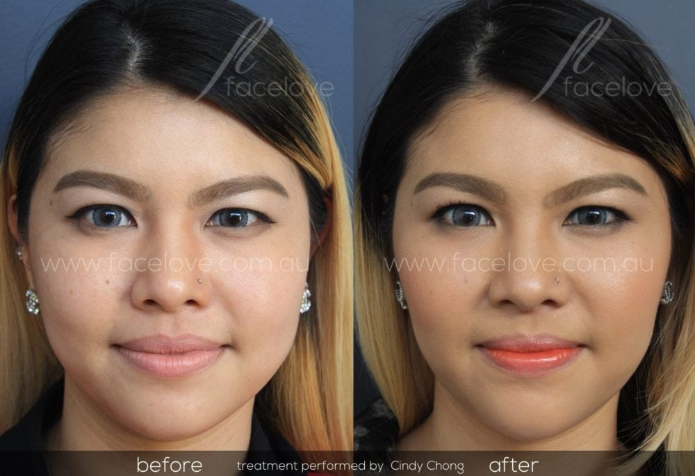 facial reshaping before and after @ facelove