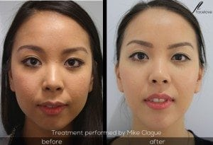 facial reshaping before and after mike clague