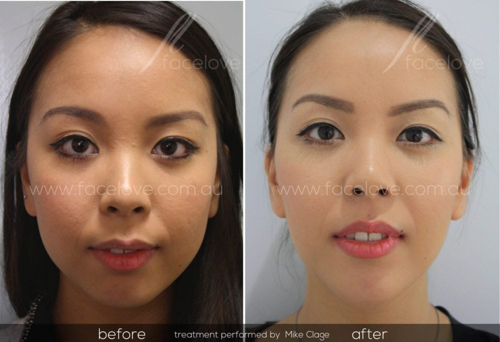 facial reshaping before and after