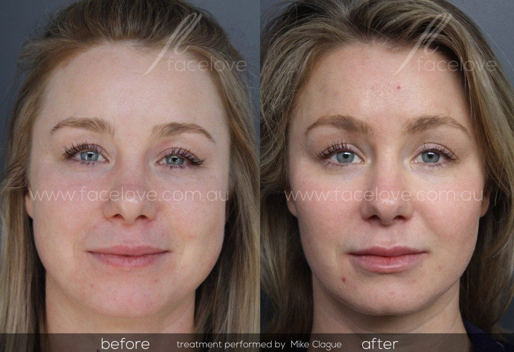 facial reshaping treatment before and after @ facelove