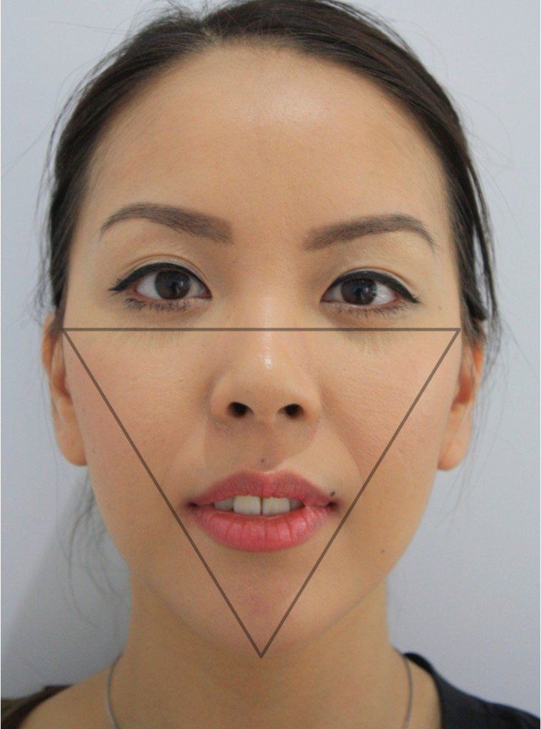 Facial reshaping triangle