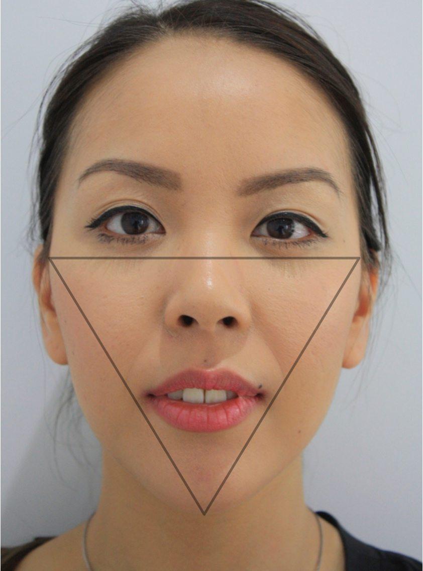 Facial Reshaping and Facial Slimming - Facelove