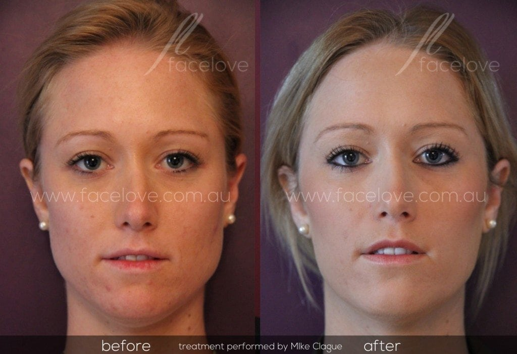 Facial Slimming Before and After @ facelove Mike Clague