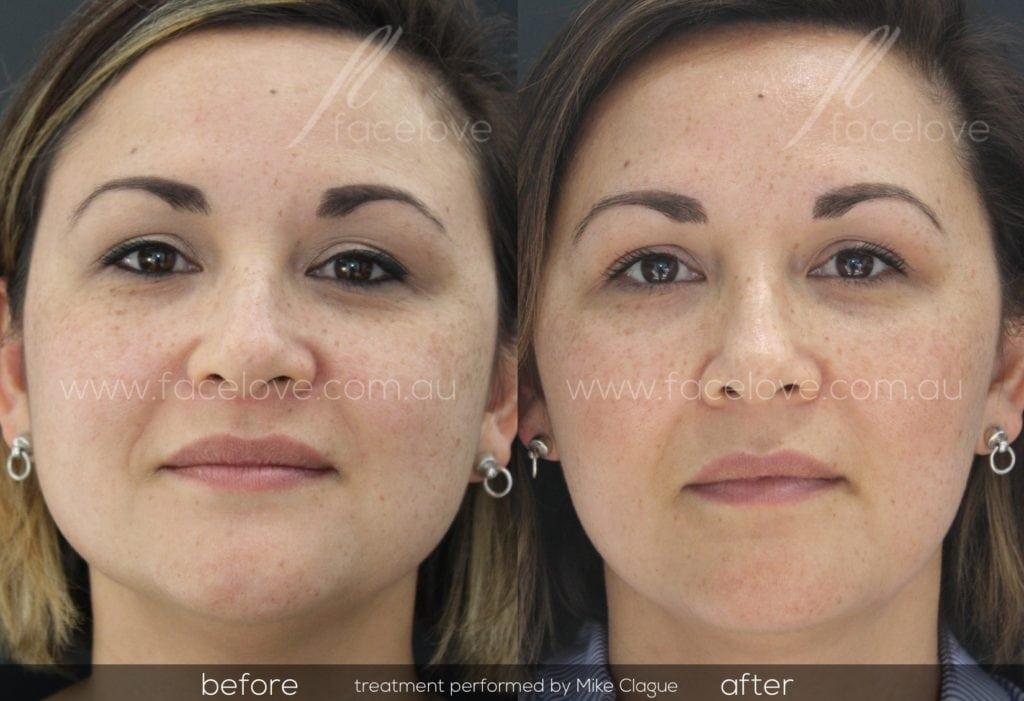 Facial slimming treatment