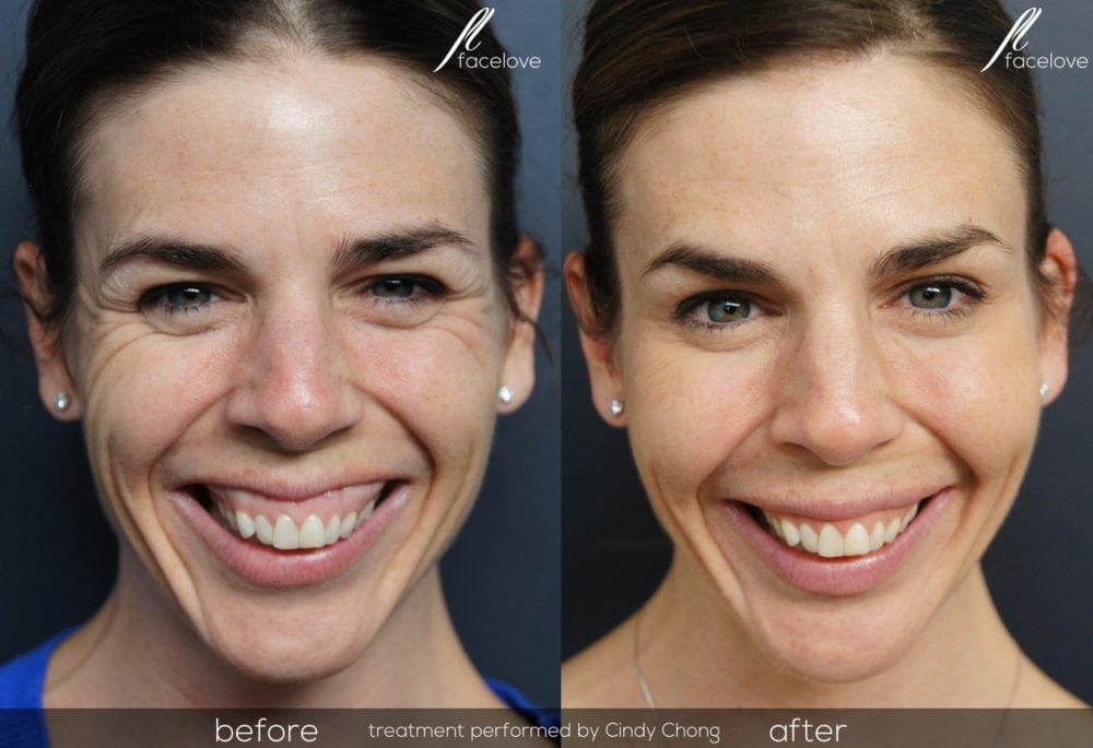 Gummy smile Before and After @ facelove