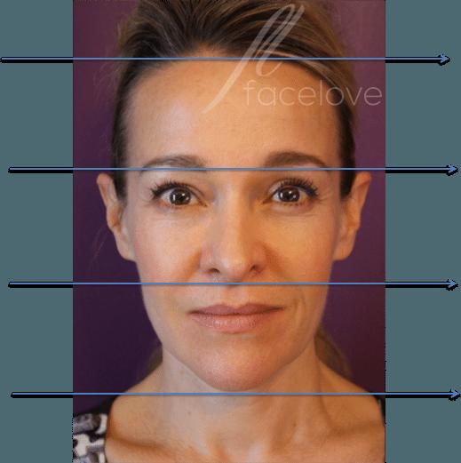 Lower face rejuvenation at facelove
