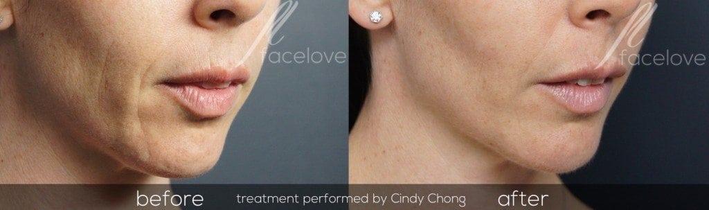 lower face rejuvenation filler @ facelove