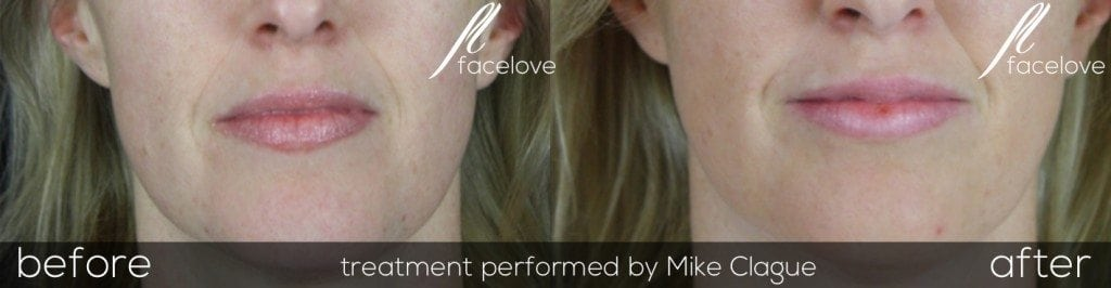nasolabial folds before and after filler at facelove