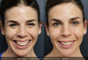Anti-wrinkle gummy smile treatment before and after