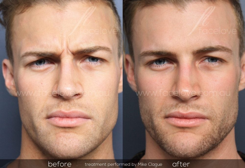 anti-wrinkle injections for men frown lines