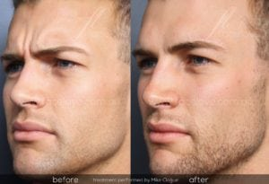 anti-wrinkle injections melbourne for men