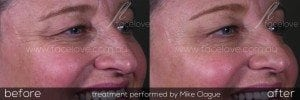 Crows Feet Treatment Before and After