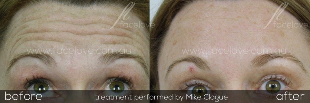 facelove forehead lines anti wrinkle treatmentsfacelove forehead lines anti wrinkle treatments