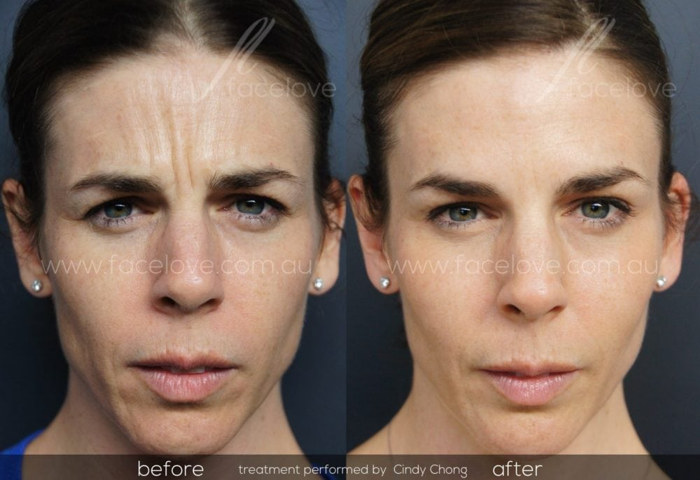 Five Benefits of Anti-Wrinkle Injections at Melbourne-based Facelove