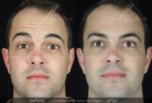 Forehead wrinkle treatment before and after