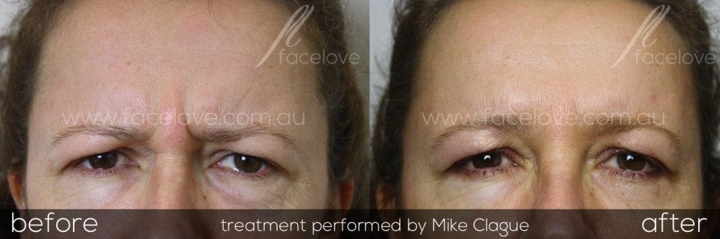 frown lines anti-wrinkle treatment 3 @ facelove