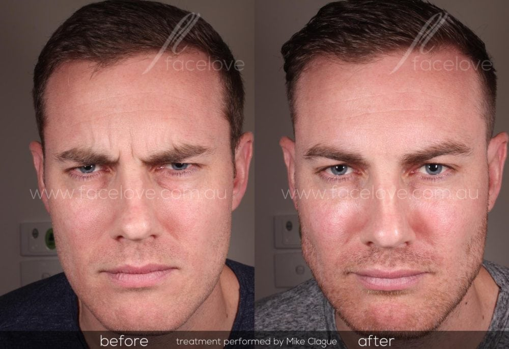 male frown line treatment before and after at facelove