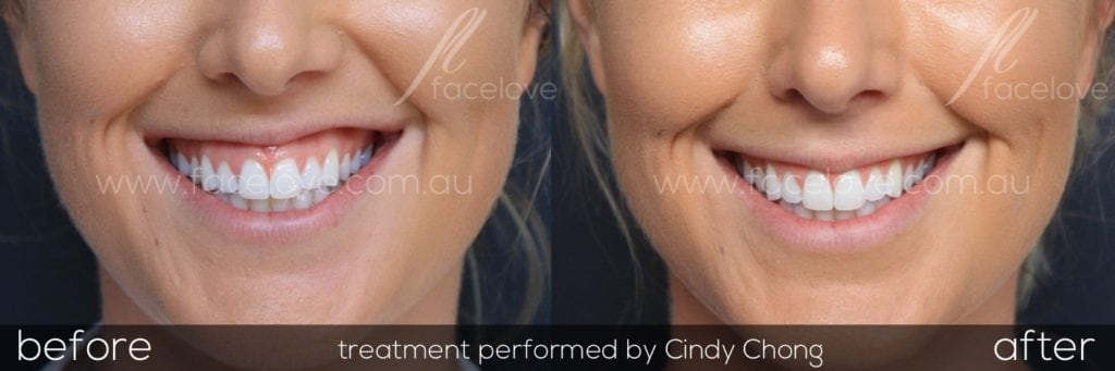 Treat a gummy smile with anti-wrinkle injections melbourne