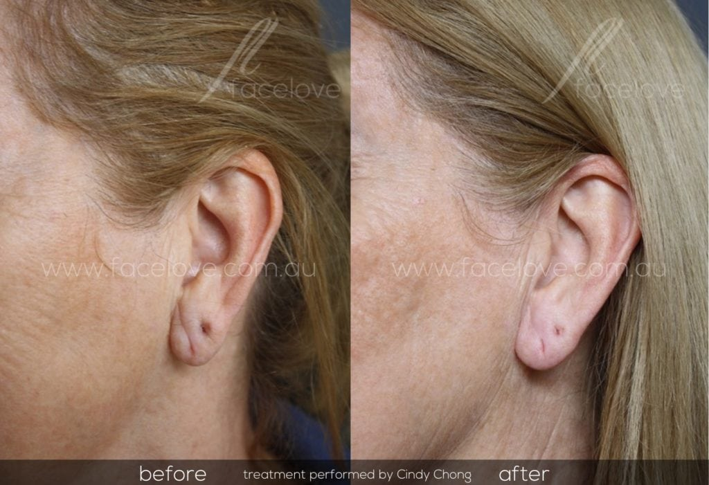 Ear lobe dermal filler treatment before and after