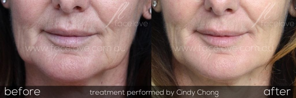 Marionette lines and Jowls treatment before and after at facelove