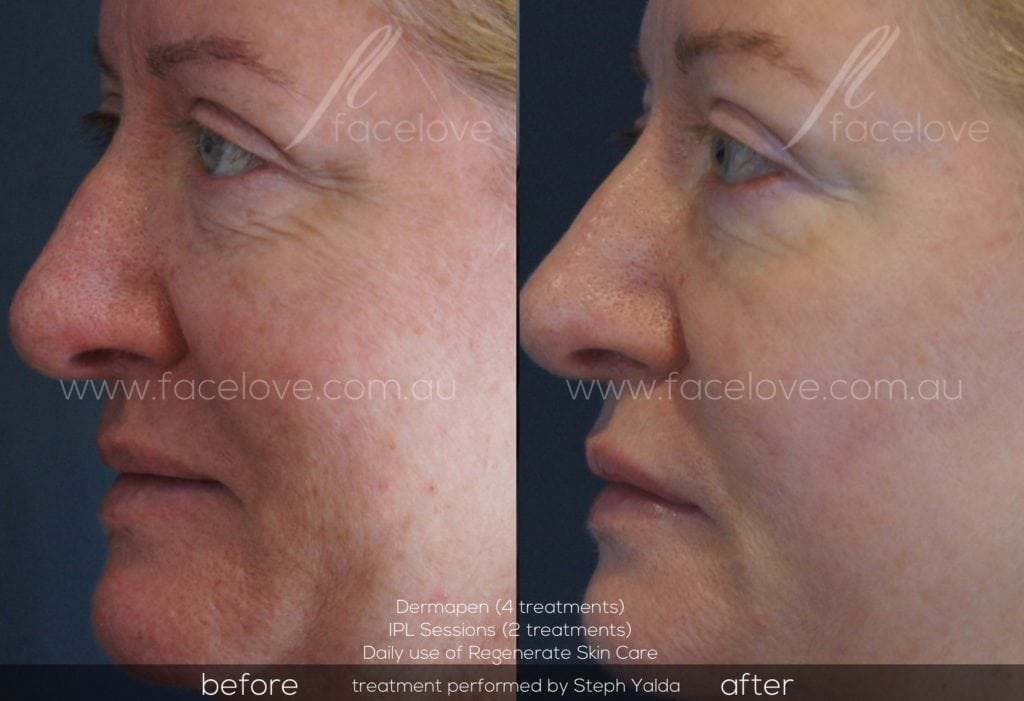 Dermapen before and afters at Facelove Melbourne