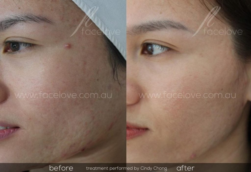How to get rid of acne scars with Dermapen