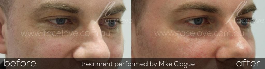CO2 Laser Resurfacing to get rid of fine lines at Facelove