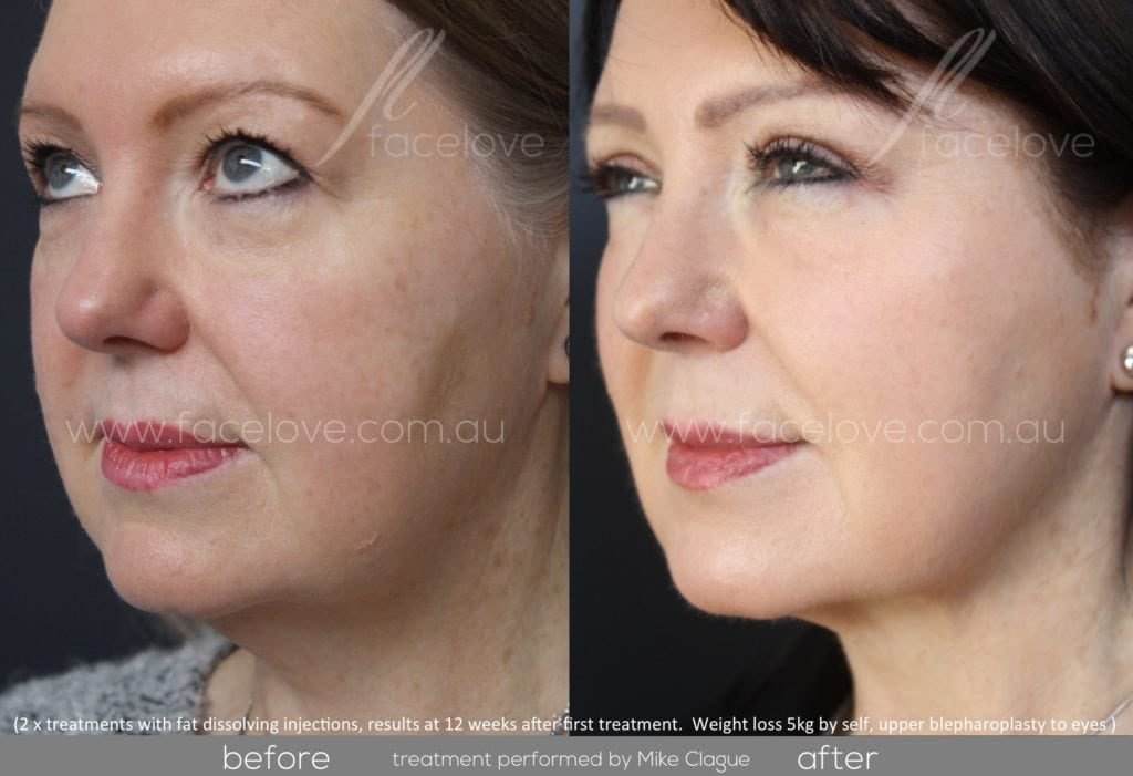 Double chin fat dissolving Injections Melbourne