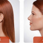 How to get rid of a double chin treatment