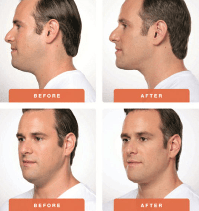 How to Get Rid of a Double Chin in Melbourne